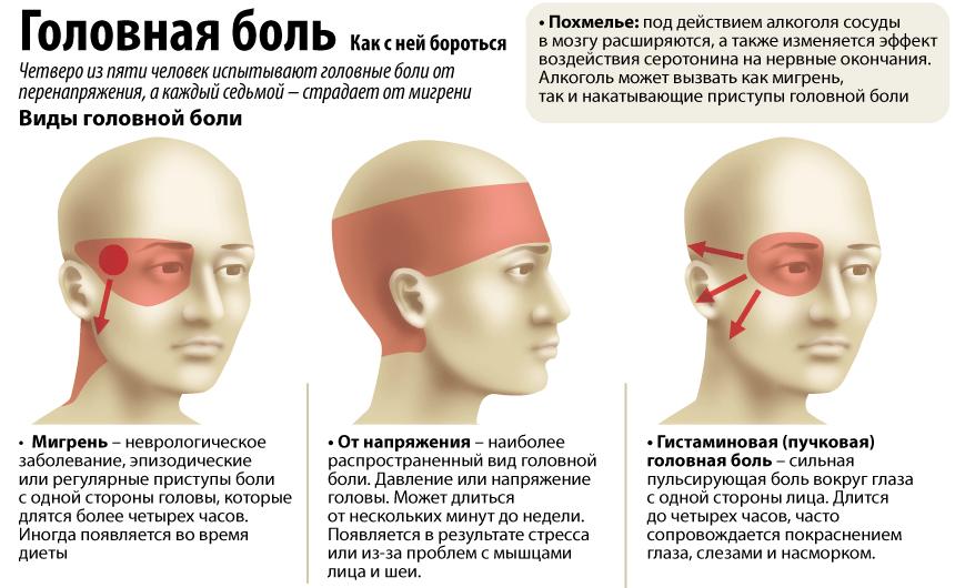 Лечение головной боли, мигрени