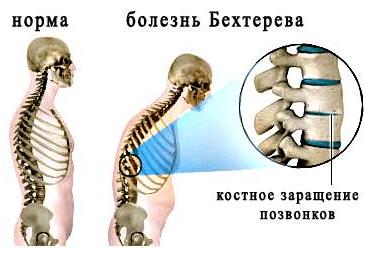 Болезнь Бехтерева лечение