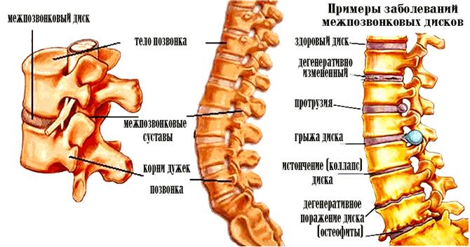 болі в грудному відділі хребта