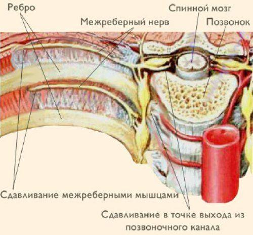 міжреберна невралгія лікування