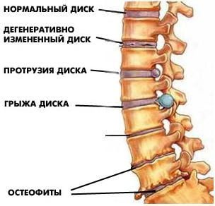 Поперековий остеохондроз