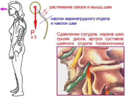 Біль в шиї при нахилі