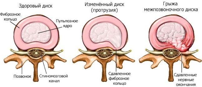 лечение протрузии диска