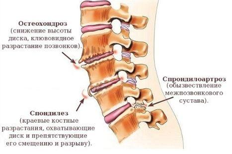 Шейный остеохондроз: лечение, симптомы