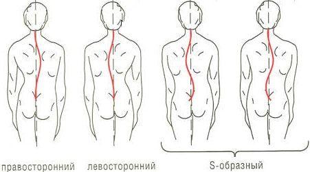 сколіоз