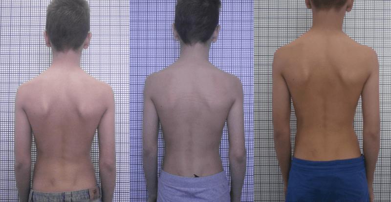 Сколиоз кифоз грудного отдела позвоночника лечение