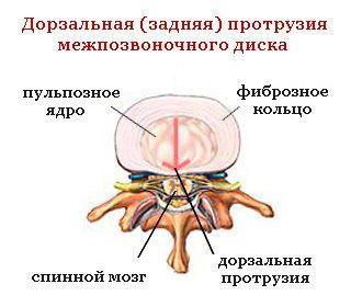 Задняя дозеральная протрузия