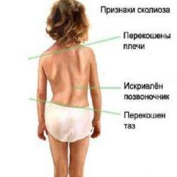 сколиоз симптомы